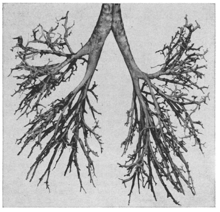 Liebow's vinylite cast of the bronchial tree of an adult, from Weibel
