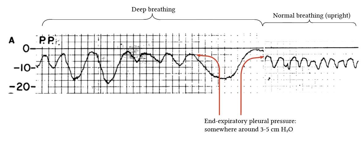 Pleural pressure tracings from Mead & Ganesler (1959)