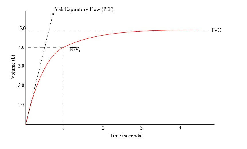 Spirometry curve with FVC FEV1 and PEF
