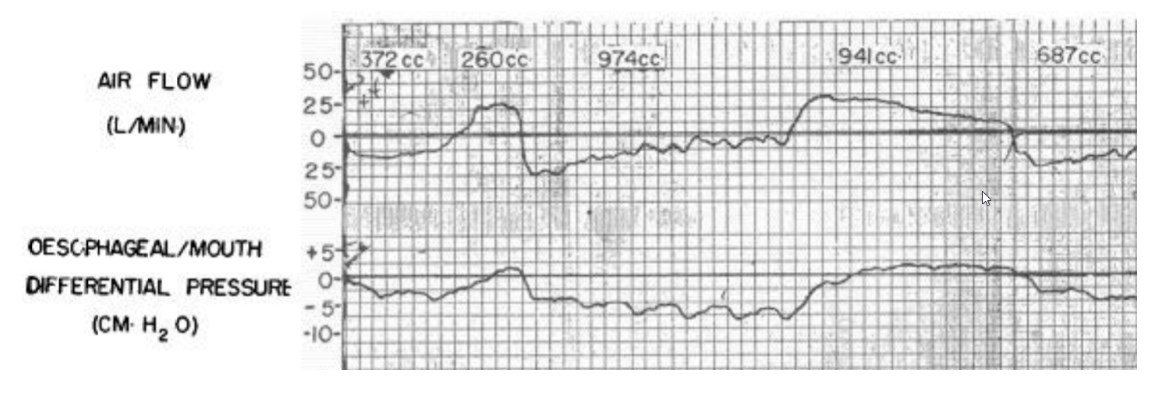 air flow and pleural pressure from Cherniak et al, 1955