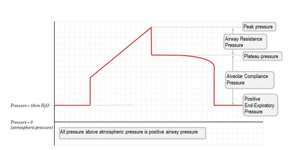 details of the ventilator pressure waveform