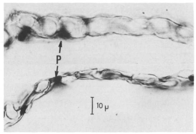 distended cat lung capillaries at different perfusing pressures (Sobin et al, 1972)