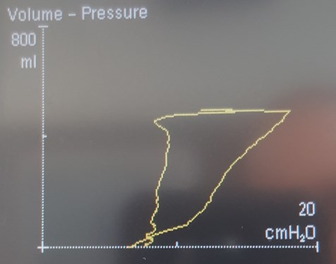 dynamic pressure-volume loop on a Siemens Servo-I.jpg