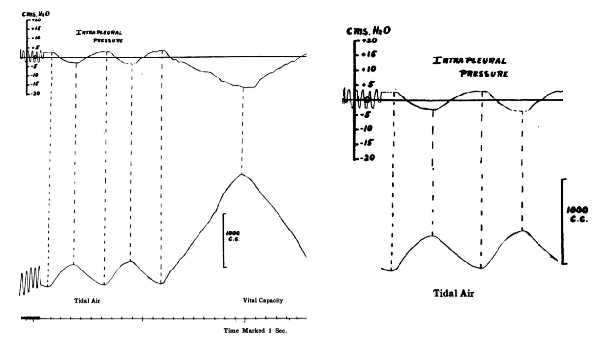 pleural pressure recorded by Christie and McIntosh (1934)