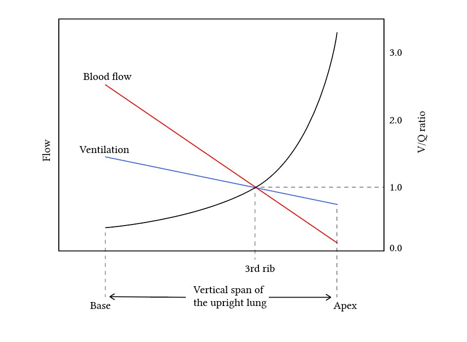 ventilation perfusion and V/Q ratio - combined graph
