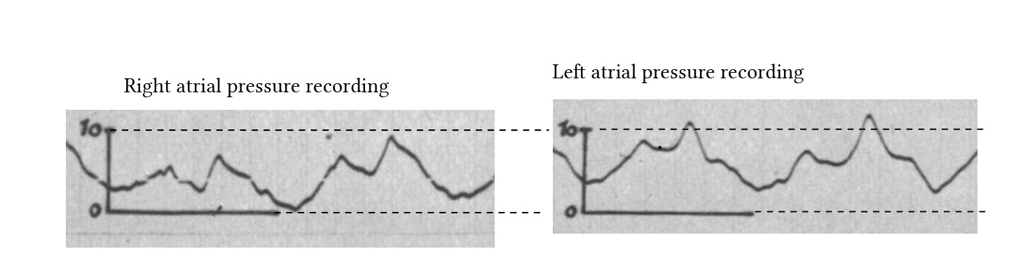 A comparison of left and right atrial pressure recordings from Weissel et al, 1956