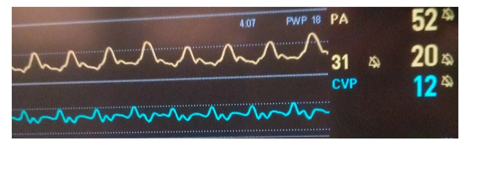CVP%20-%20prominent%20a-waves%20in%20pulmonary%20hypertension.jpg