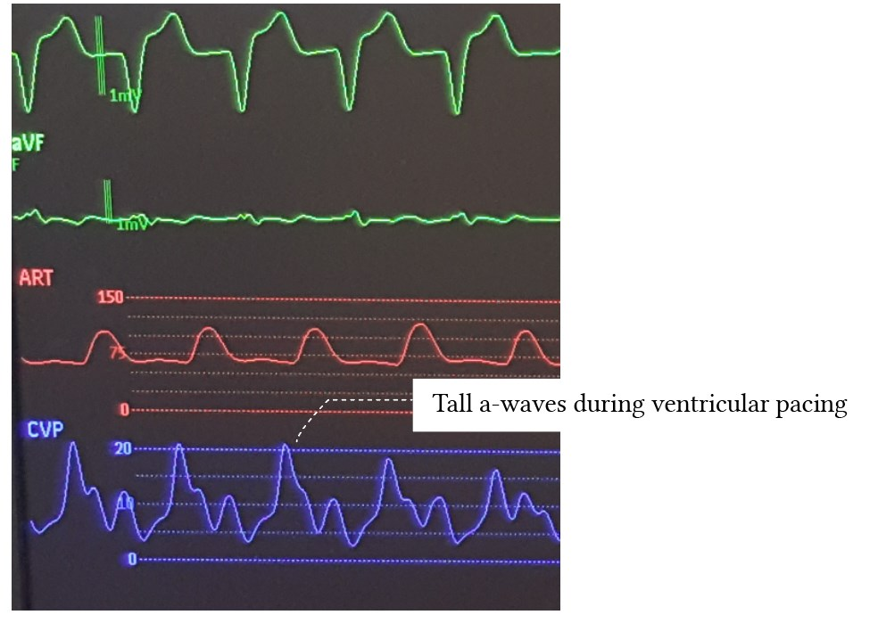 CVP - tall a-waves in ventricular pacing