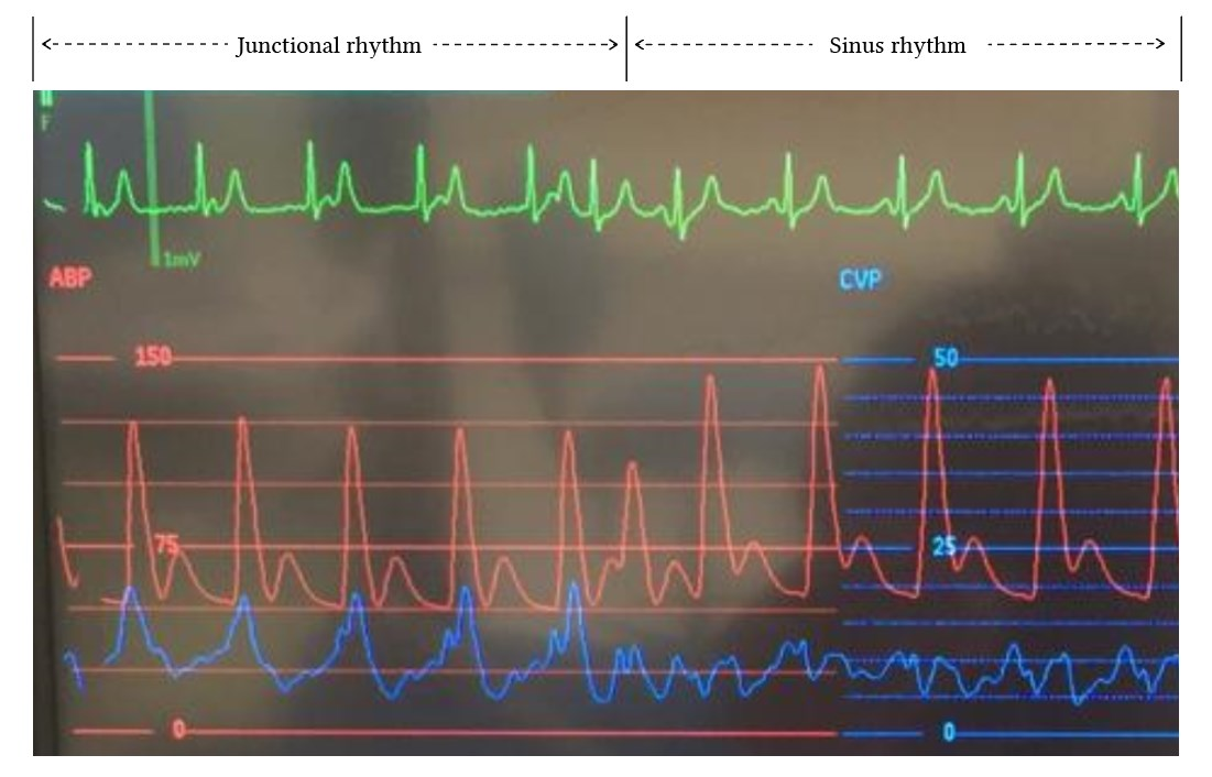 Junctional and sinus cVP waveforms in comparison