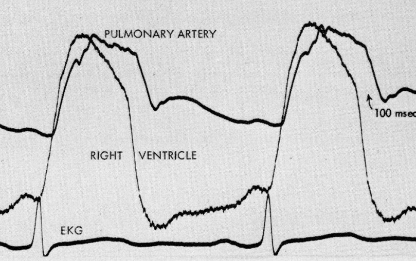 RV and PA pressure from Curtiss et al (1975)