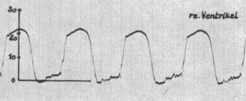 Right vetricular pressure waveform from the Weissel et al (1956)
