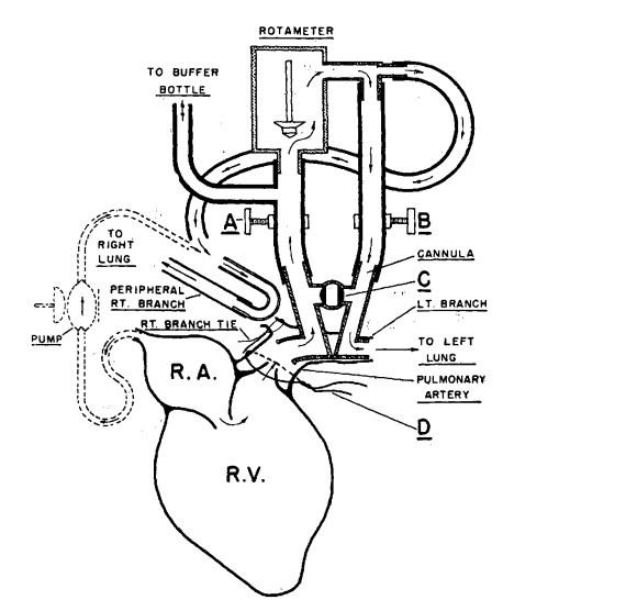 Seelys method of measuring cardiac output by a main pulmonary artery rotameter