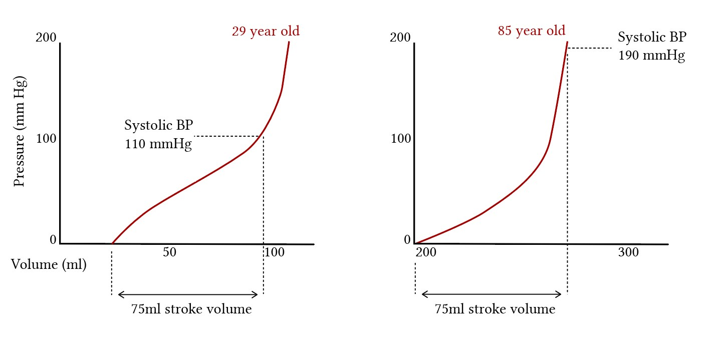 The pressure-volume relationships of aortas different ages