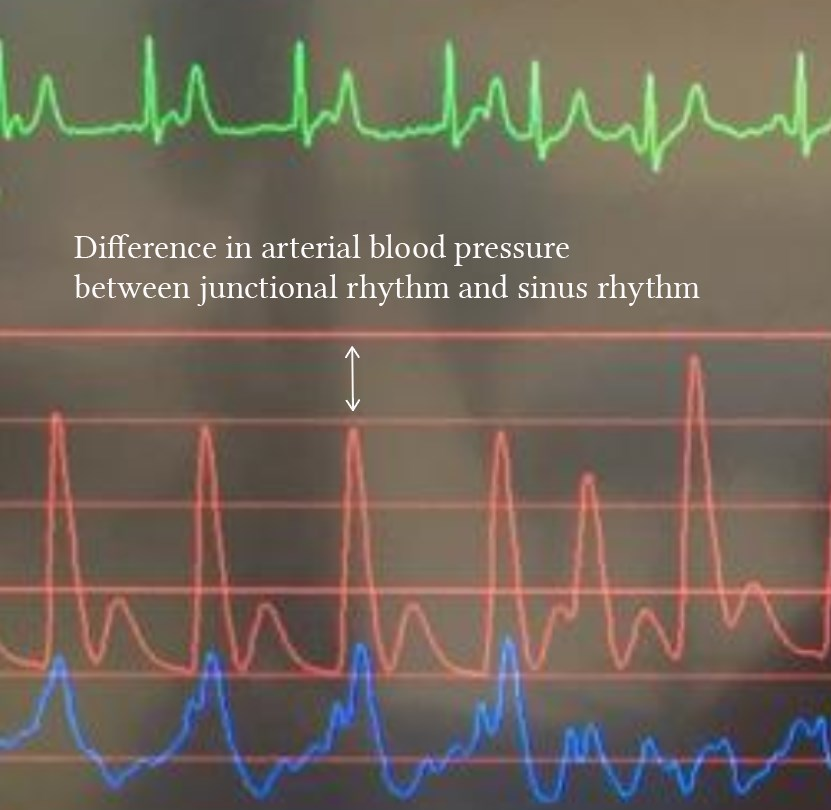 difference between blood pressure in junctional and sinus rhythm