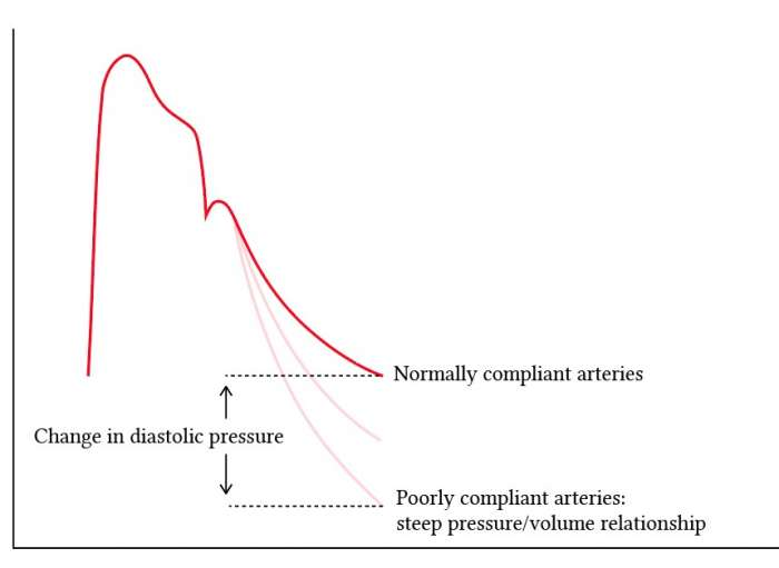 different diastolic pressures with different levels of arterial compliance2.jpg
