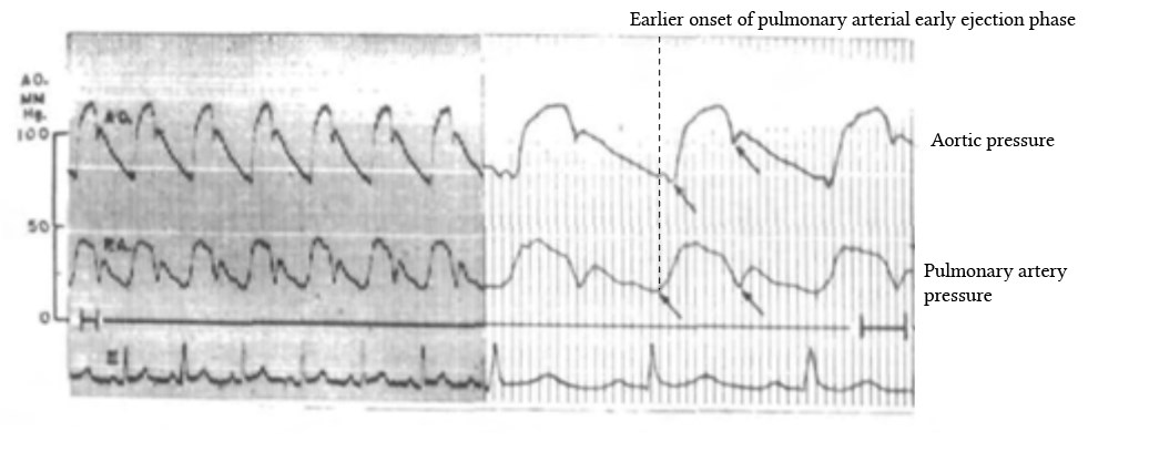 earlier onset of right sided ventricular early ejhection phase from Braunwald et al, 1956