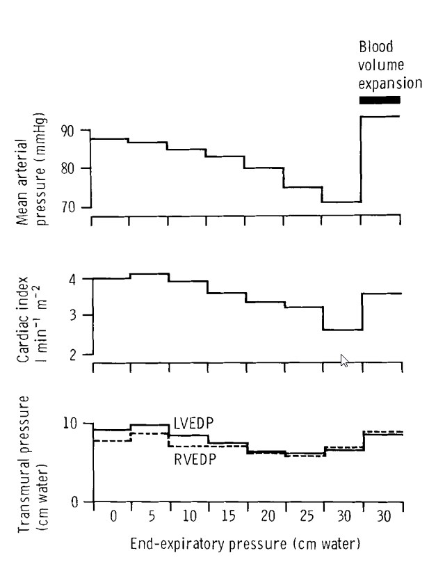 effect of PEEP on preload from Nunn (1984) and Jardin (1981)