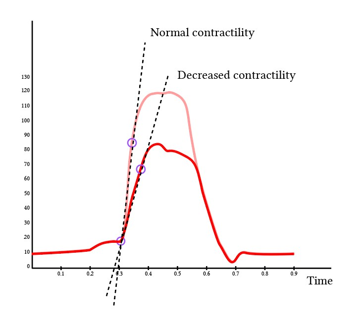 effect of changes in contractility on dPdT
