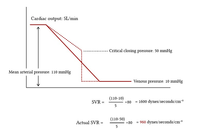 error in calculating SVR because of high critical closing pressure