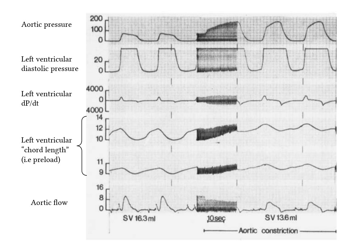 experimental effects of increased afterload on preload, from Bugge-Asperheim (1973)b