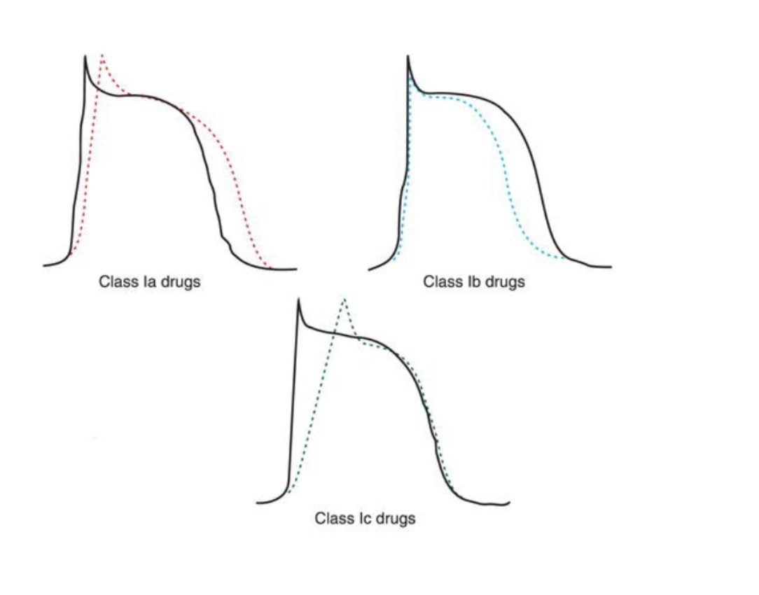 incorrect but representative diagram of Class I agent activity on the cardiac action potential