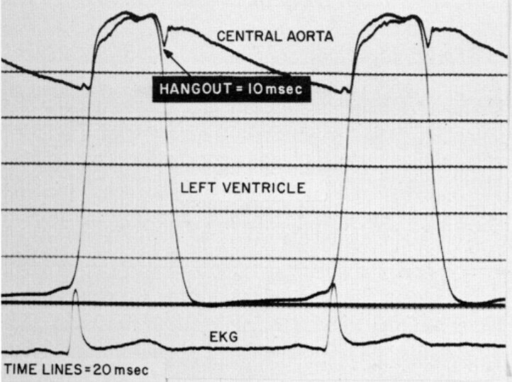 ventricular pressure trace from Curtiss et al