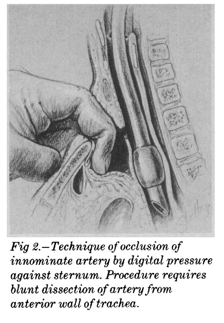 Utley technique of compressing the innominate artery