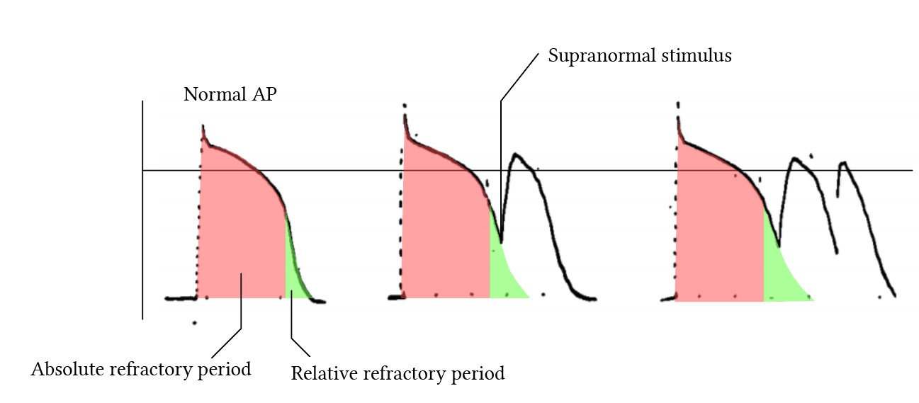 Subnormal depolarisation due to stimulus during the relative refractory period
