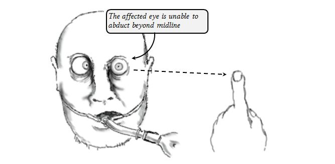 abducens nerve lesion