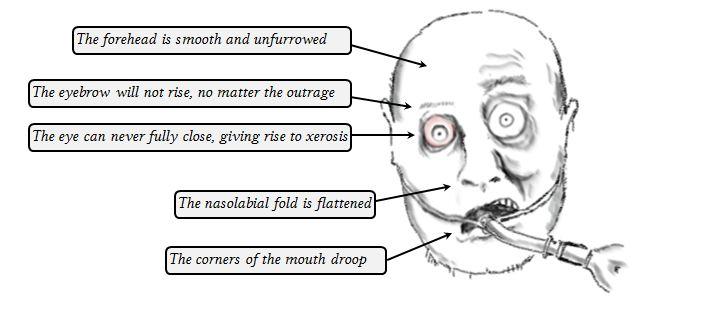 facial nerve lesion