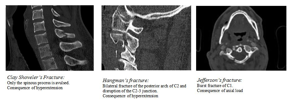comparison of clay shovelers hangmans and jeffersons c-spine fractures
