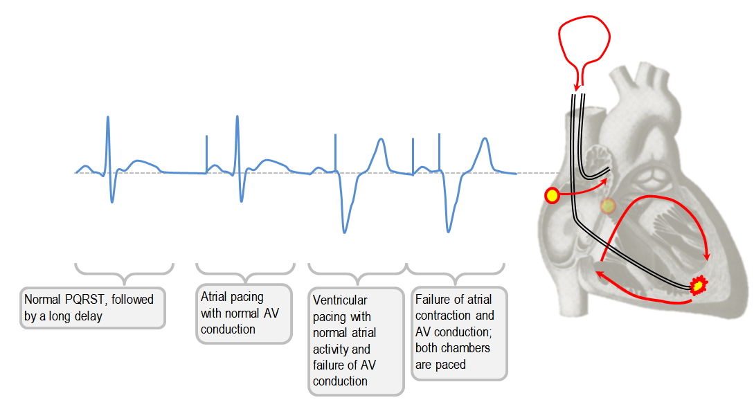 Single versus double chamber pacemaker