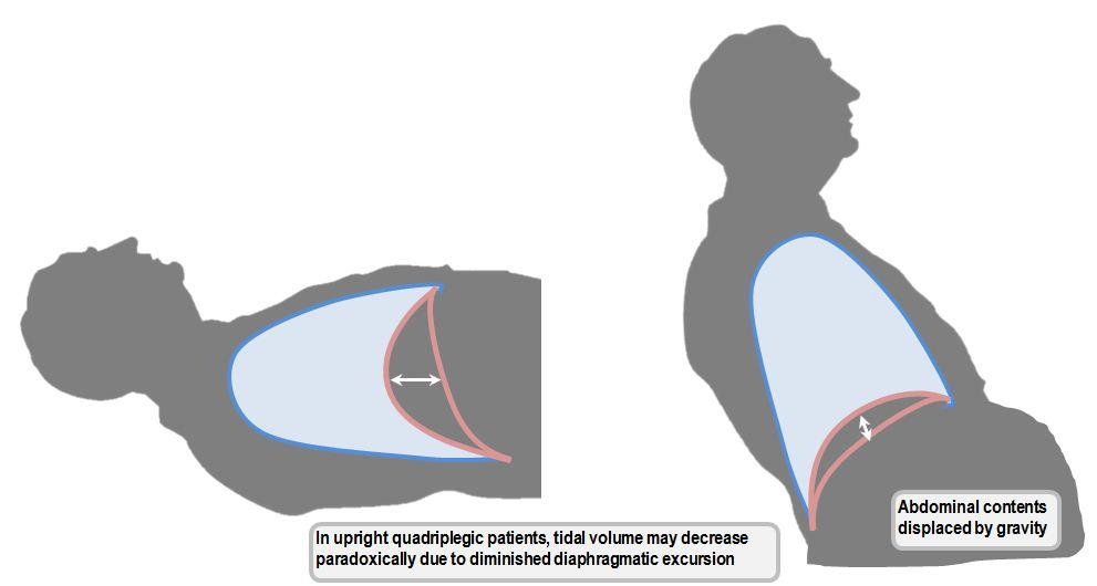 Tidal volume changes according to posture in quadriplegic patients